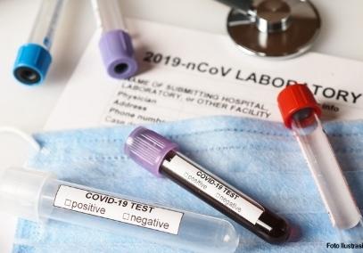 Rumah Sakit Sudah Dapat Ajukan Klaim COVID-19